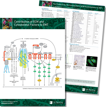 Contribution of ECM and Cytoskeletal Factors to EMT pathway handout